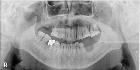 骨が吸収した顎